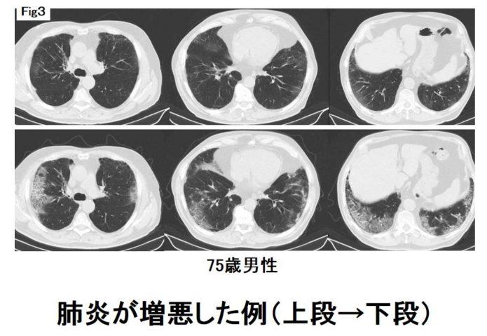 間 質 性 肺炎 入院 期間